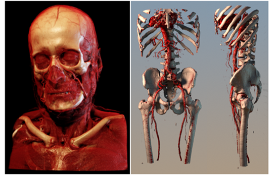 Medical visualisation
