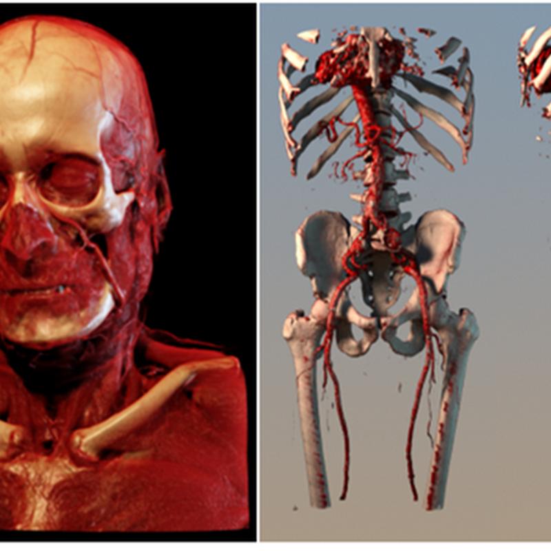 O futuro do Raio-X e da ultrassonografia