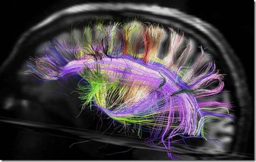 cerebro_mapa