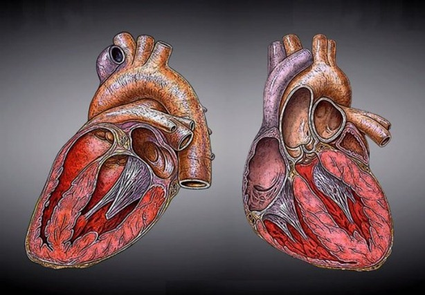 cardiacas