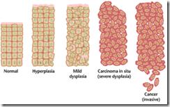 Sel normal menjadi sel kanker