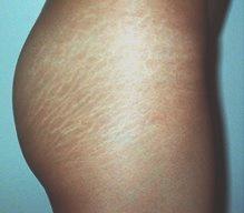 Prevención y tratamiento de las estrías
