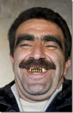 goldenteeth