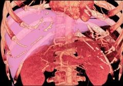 4-1-4-liver-transplant