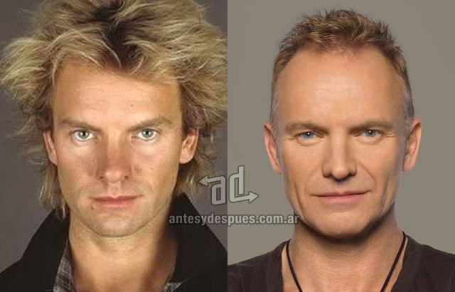 Hair Loss Before &amp; After of  Sting