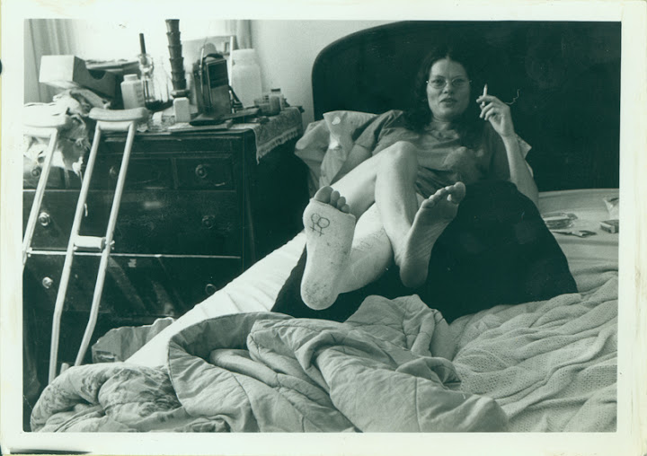 "Carolyn Weathers with broken leg and ""lesbian"" symbol on the cast. 1975"