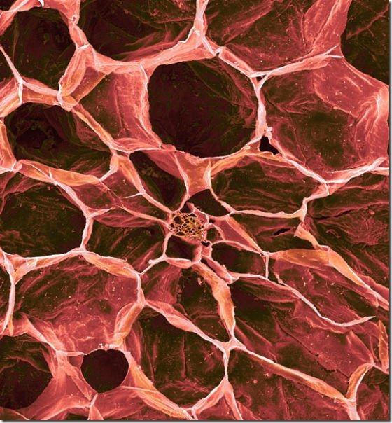 food-electron-micrograph-11