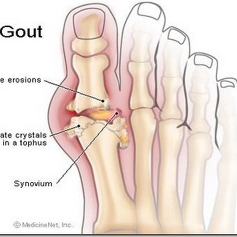 Penyakit Gout - Apa yg perlu dimakan & dihindar