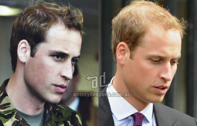 Hair Loss Before &amp; After of  Prince William