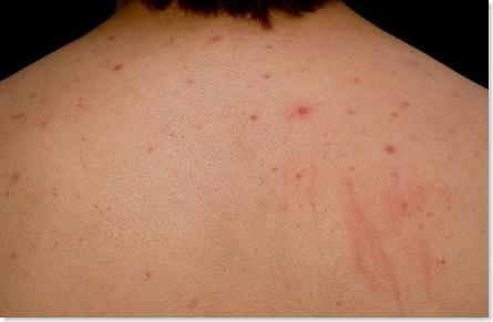 back acne bacne