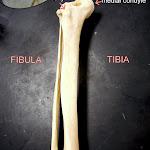 tibia_fibula_labeled.JPG