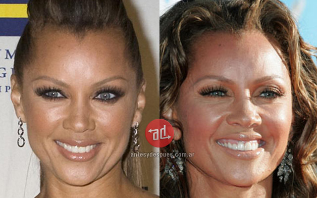 Famosos con botox, Vanessa Williams