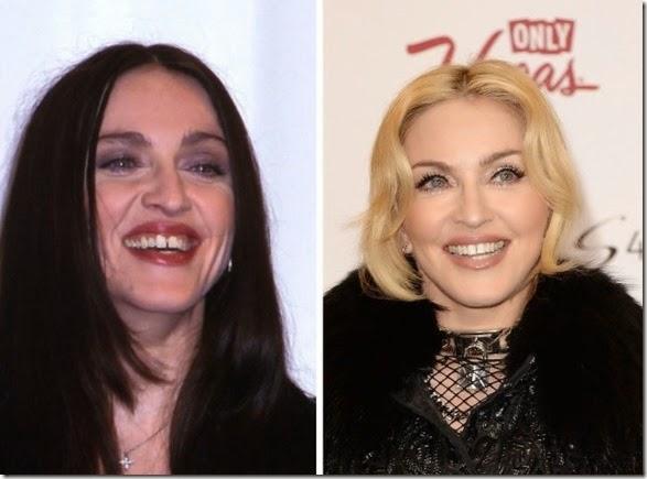 missing-teeth-funny-023
