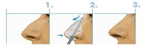 pasos-rinoplastia