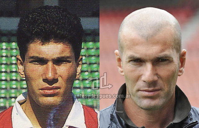 Hair Loss Before &amp; After of  Zinedine Zidane