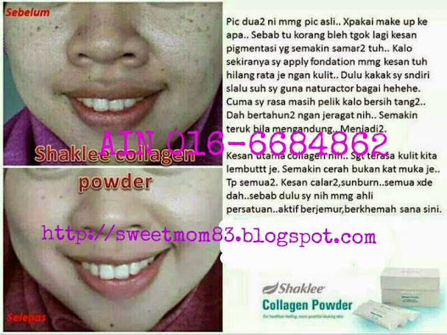 Collagen powder Shaklee hilangkan jeragat