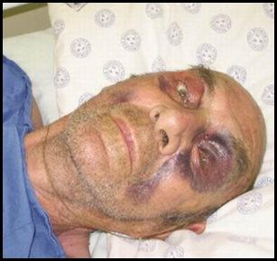POTTIE POTGIETER WINBURG WELKOM LEFT FOR DEAD 5 BL ATTACKERS WINBURG JAN182012