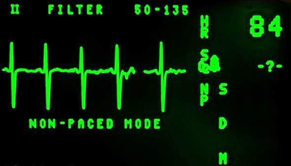 Th electrocardiogram 16948 1280