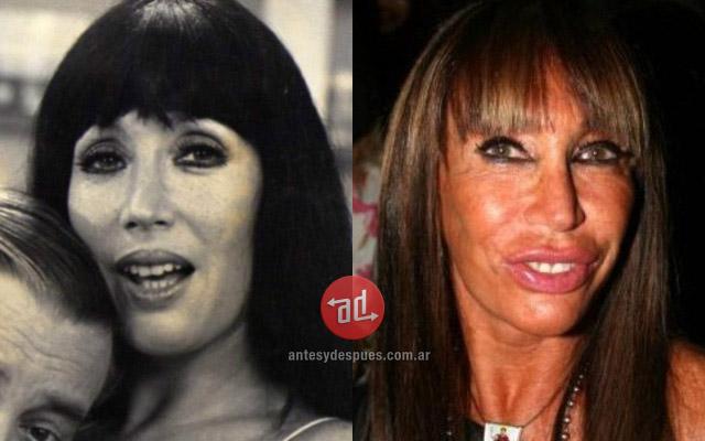 Foto del aumento de labios de Moria Casan