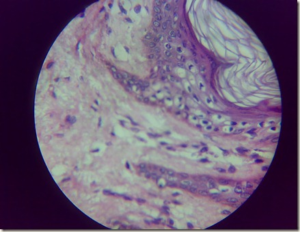 Skin magnified microscopic view