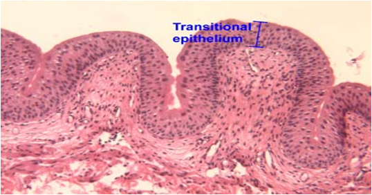 Transitional epithelium