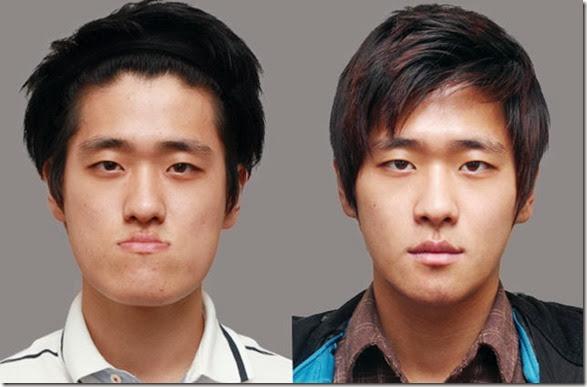 korean-plastic-surgery-42