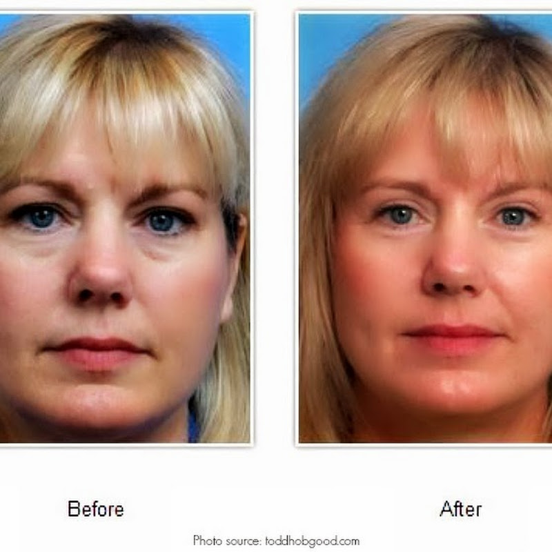 What to Look For In A Facial Plastic Surgeon