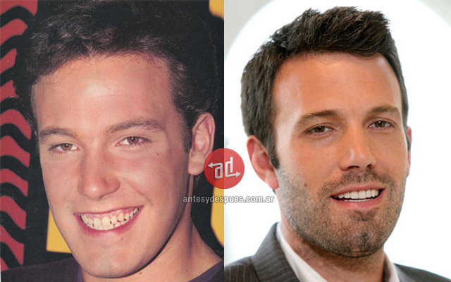 New teeth of Ben Affleck