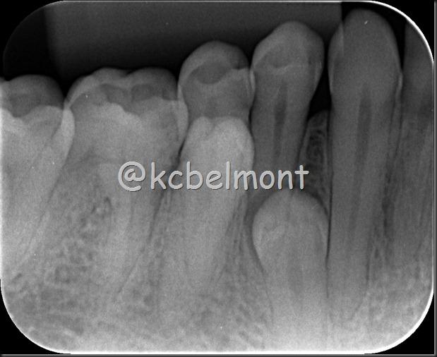 4 pré-molares periapical