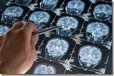 Studio USA scopre causa Alzheimer