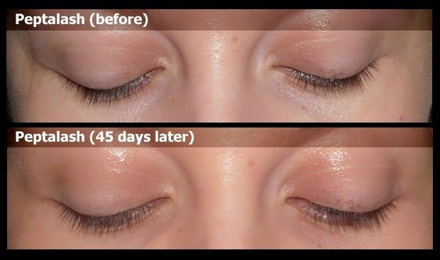 01-peptalash-before-after-result-photo