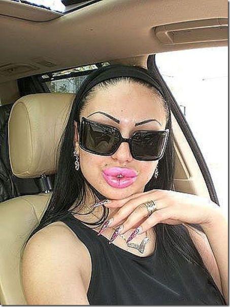 silicone-lips-fail-8