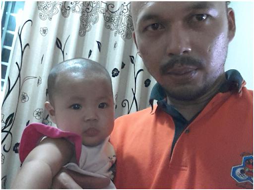 Baby Auni botak