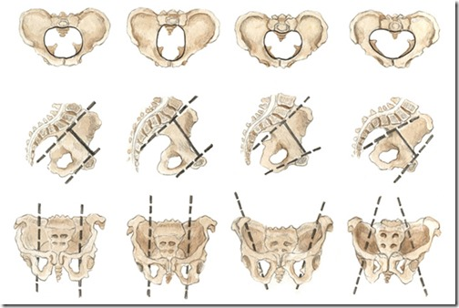 Shapes of female pelvis