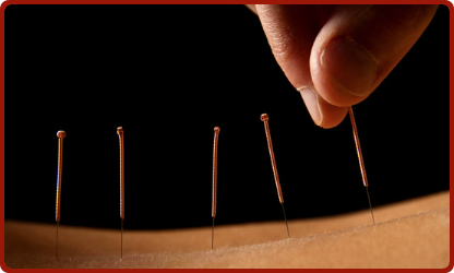 Does Acupuncture Have a Place in Western Medicine