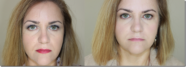 before after Radiesse with makeup