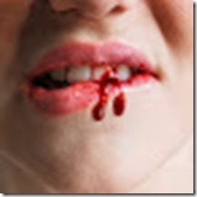 bibir berdarah-cium