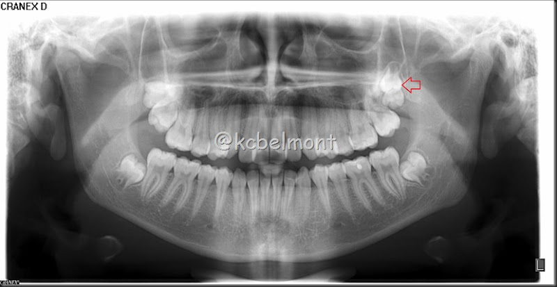 quarto molar superior equerdo (2)