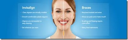 invisalign tratamiento de brackets invisibles mejores precios ofertas y promociones