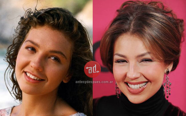 Celebrity Teeth Before and After | Before and After | Photos