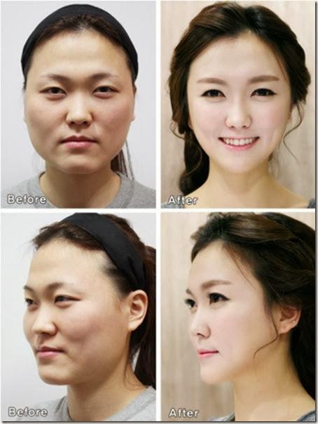korean-plastic-surgery-7