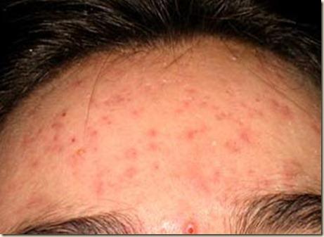 acne-NTNVa