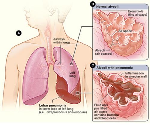 ciri ciri paru paru basah