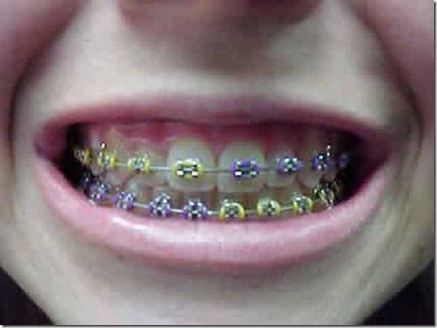 fake-braces-asia-trend-20
