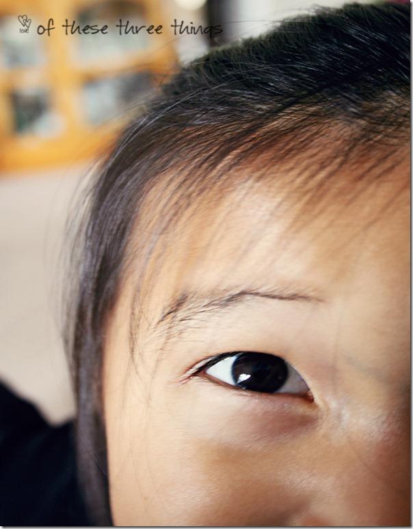 syd eyes 2
