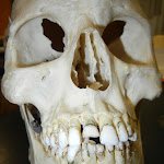 skull_maxilla - Copy.JPG