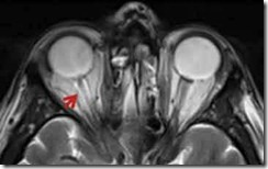 MRI-opticNerve