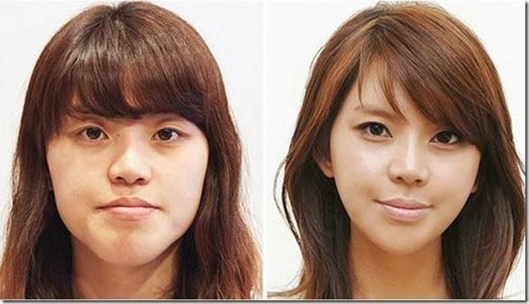 korean-plastic-surgery-9