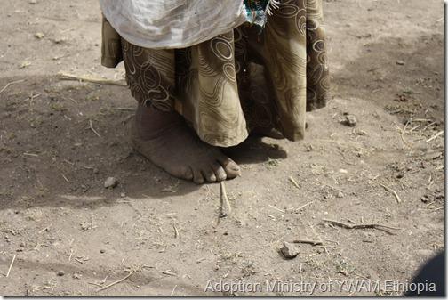 a widow's feet - Copy
