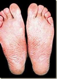 El tratamiento después de la desaparición de la uña en el pie al hongo